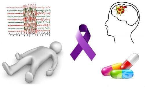 Антиепилептични (антиконвулсивни) средства - изображение