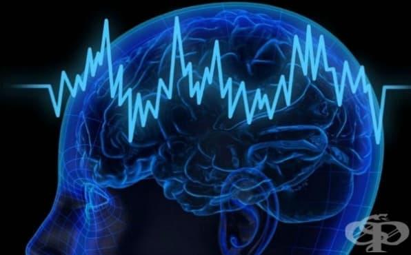 Електроконвулсивна терапия - изображение