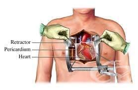 Сърдечна хирургия - изображение