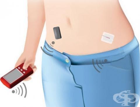 Имплантируема инсулинова помпа - изображение