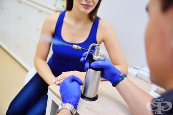 Криотерапия - изображение