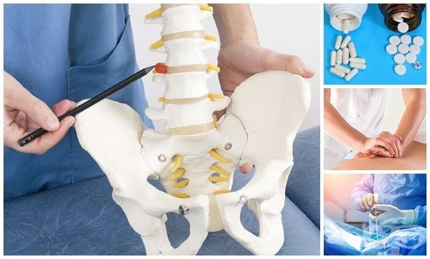 Лечение при дискова херния - изображение