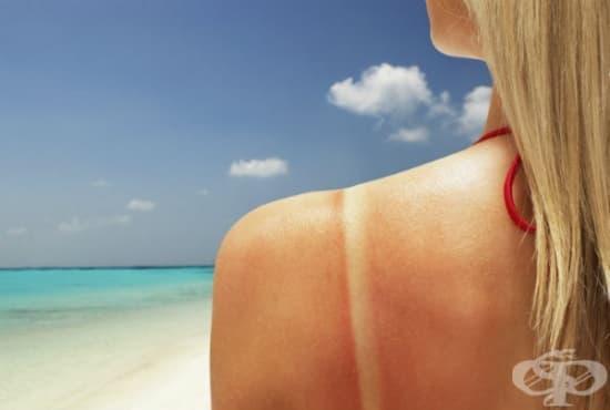 Лечение и първа помощ при слънчево изгаряне - изображение