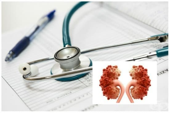 Лечение при бъбречна поликистоза (поликистоза на бъбреците) - изображение