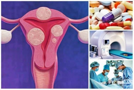 Лечение при миома на матката - изображение