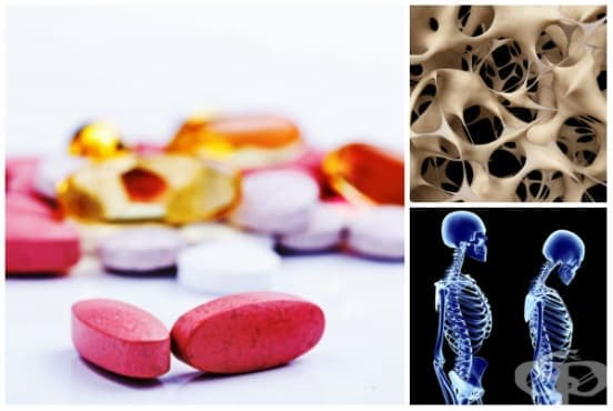 Лечение при остеопороза - изображение