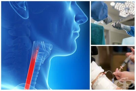 Лечение при рак на хранопровода - изображение