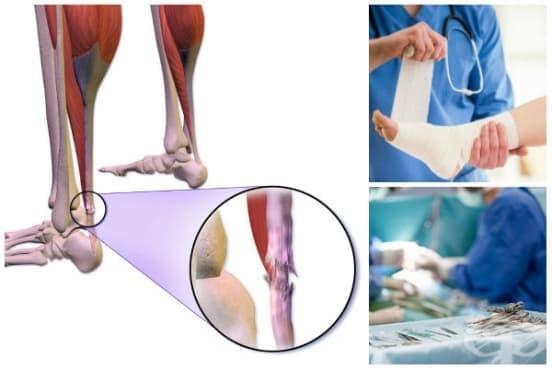 Лечение при руптура на сухожилието (скъсано сухожилие) - изображение