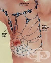 Хирургично отстраняване на лимфни възли - изображение