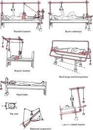 Екстензионна терапия - изображение