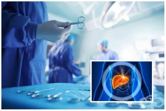 Трансплантация на черен дроб - изображение