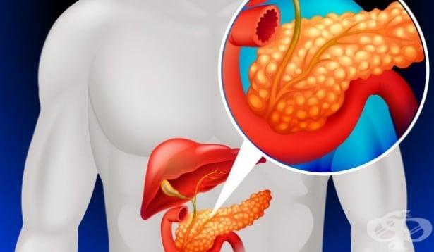 Трансплантация на панкреас - изображение
