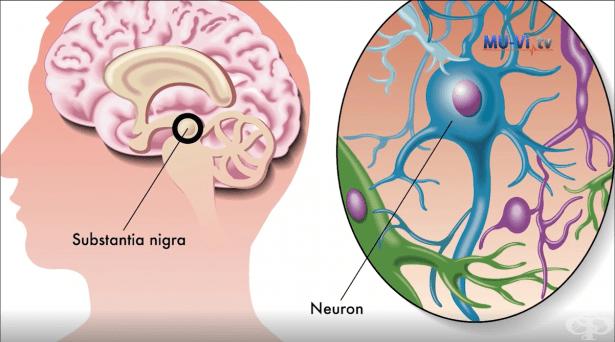 Дълбоката мозъчна стимулация – революционна терапия при невродегенеративни заболявания - изображение