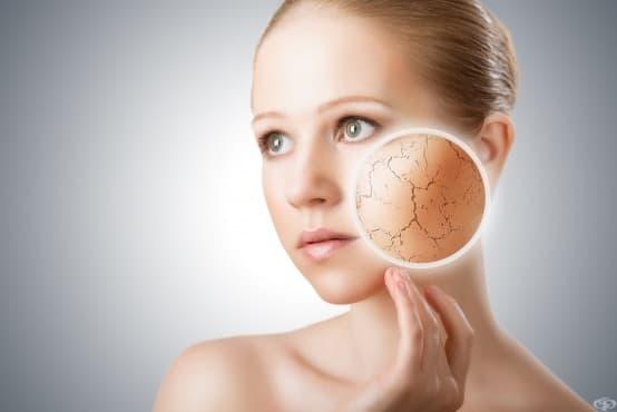 Д-р Янита Михайлова - Как да предпазим кожата през студеното време? - изображение