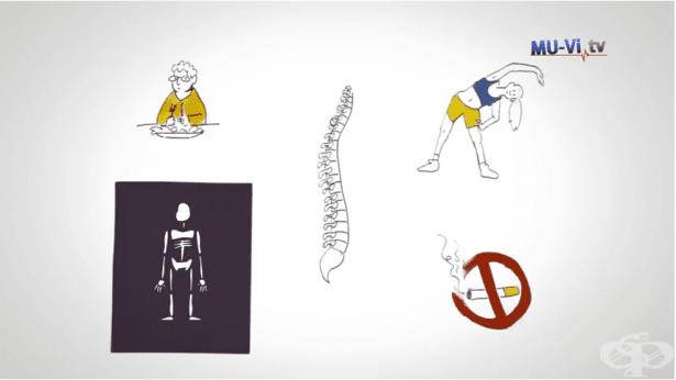 Болестта на Бехтерев - фаталното забавяне на диагнозата - изображение