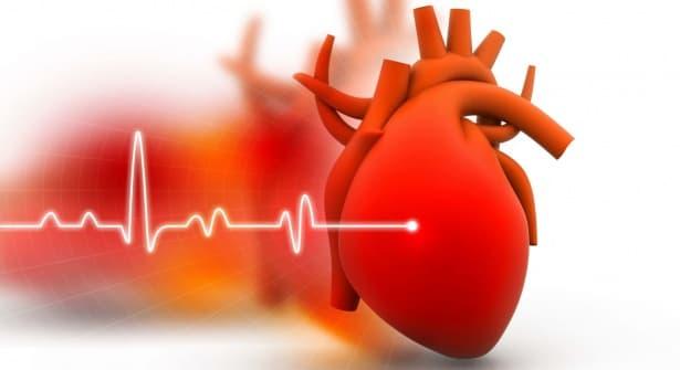 Спешна интервенционална реваскуларизация в случай на сърдечен инфаркт - изображение