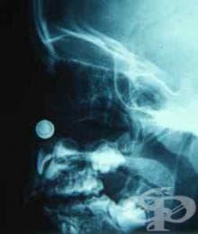 Диагноза на чуждо тяло в носа