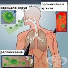 Колко трае инкубационният период при варицела?