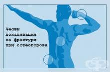 Симптоми и признаци на остеопороза