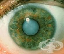 Какви са симптомите и признаците при катаракта?
