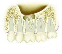 Синузит, причинен от зъбни проблеми