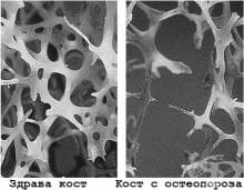 Колко типа остеопороза има?